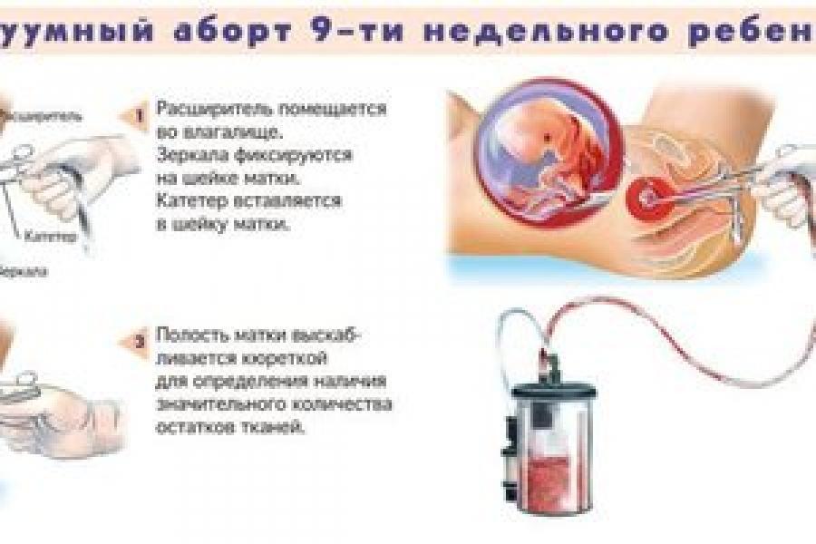 До скольки недель можно делать аборт в России: законы, правила, показания для аборта на поздних сроках
