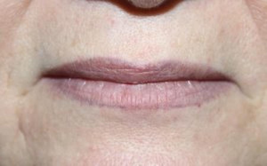 Почему синеют губы у взрослого человека и ребенка?