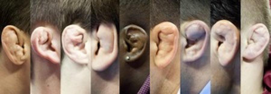 Поломанные уши борцов: симптомы, первая помощь, возможные осложнения