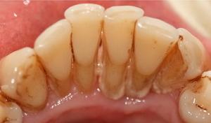 Из-за чего появляется зубной камень