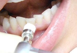 Как удалить зубной камень у стоматолога