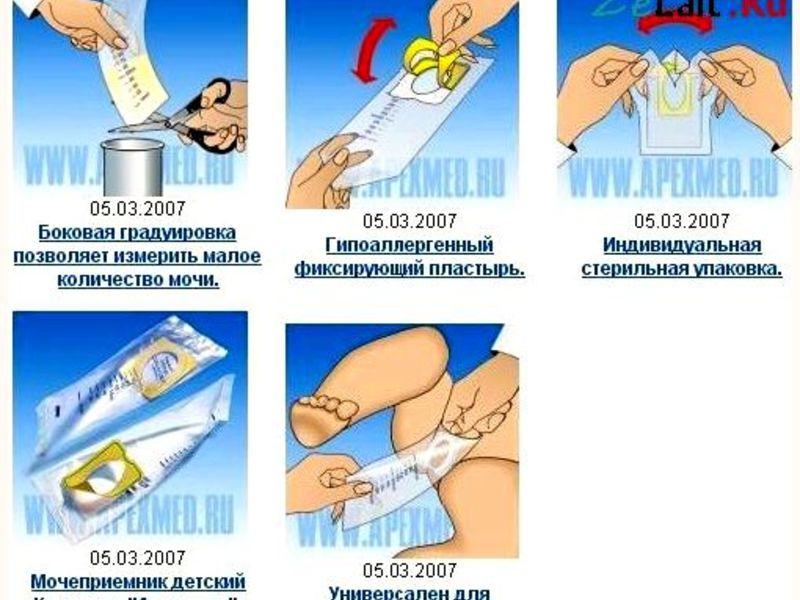 Особенности применения мочесборника