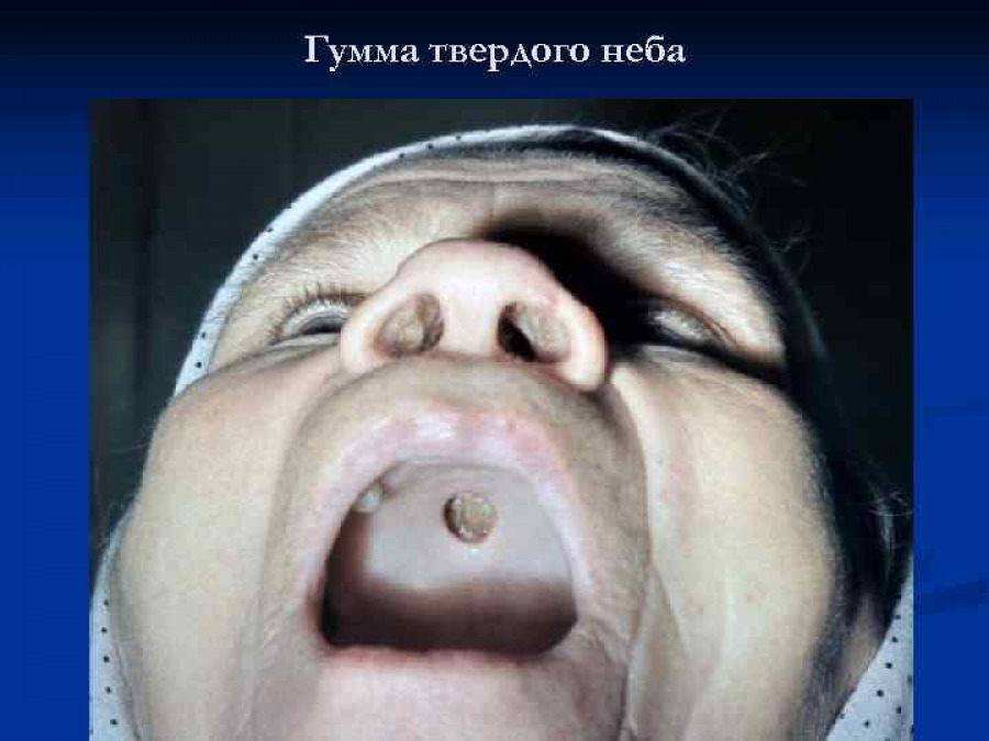 Сифилис: этиология, патогенез, периоды течения, современное лечение